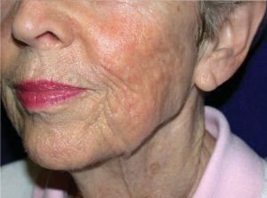 A laser treatment for skin improvement, Van Lennep Kliniek