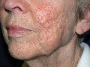 A laser treatment for skin improvement, Van Lennep Kliniek