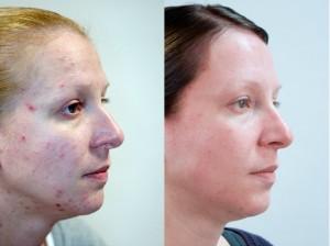 ZO Skin Health Obagi, producten en behandelingen
