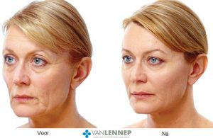 Liquid Facelift foto