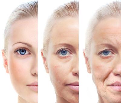 fronsrimpel verwijderen zonder botox