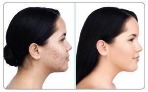 acne-camoufleren