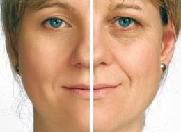 Milou Skincare (Hydrestore) voor 65% minder rimpels en wallen