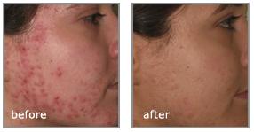 acne behandeling laser