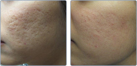 treatment acne scars