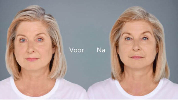 Removing nasolabial fold wrinkles