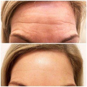 Botox rimpels voorhoofd
