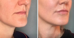 lipfillers Restylane
