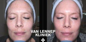 Voor en na melasma pigmentvlekken