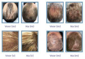 Resultaten haarfiller voor en na