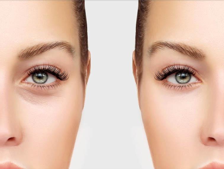 Met een traangoot filler behandeling reken je permanent af met een vermoeide blik.