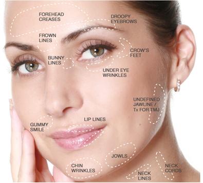 Botox behandelingen