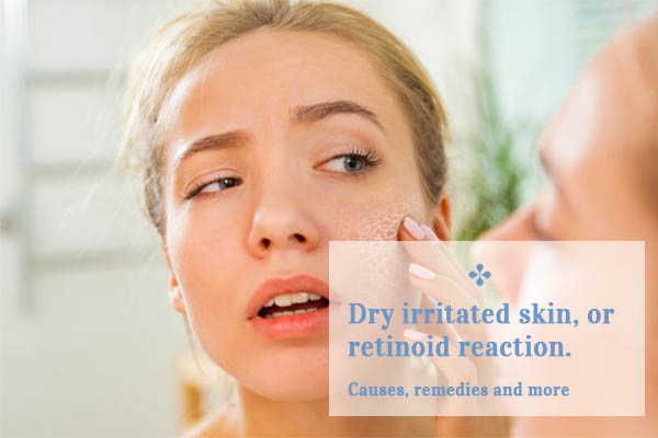 retinoid reaction