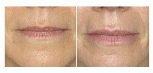 lippen opvullen voor na 1