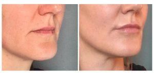 lippen opvullen voor na 2