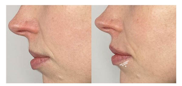 lippen opvullen voor na 3