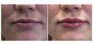 lippen opvullen voor na 4