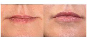 lippen opvullen voor na 5