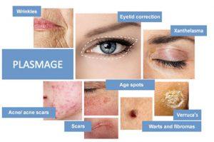 Plasmage treatments
