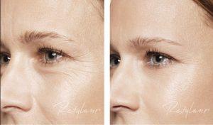 Restylane Skinbooster Voor en Na